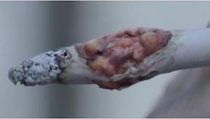 Si este video no te convence a dejar de fumar, ya nada lo hará.