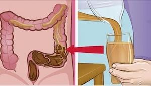 ¡No hay nada mejor para solucionar tus problemas intestinales! Este método caser